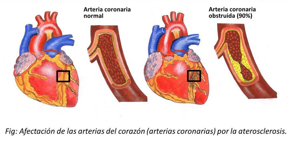 ATEROSCLEROSIS CORONARIAS
